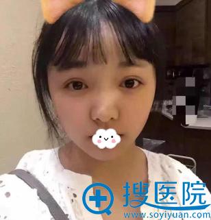 重庆华美何春涛耳软骨复合隆鼻综合整形术后恢复期真实图片