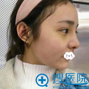 重庆华美耳软骨复合隆鼻综合整形术后恢复效果