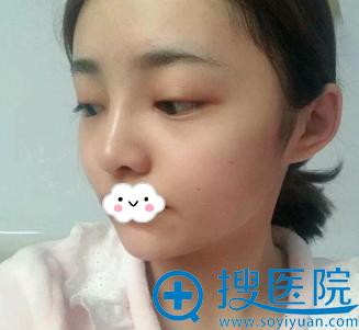 在重庆华美割双眼皮后又来做隆鼻综合整形图片