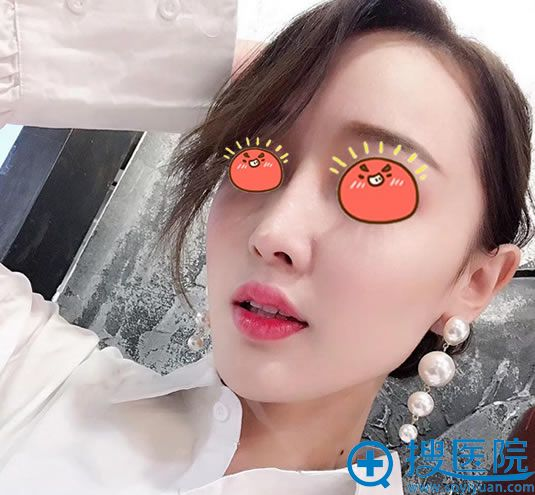 北京华韩做脂肪填充和隆鼻案例