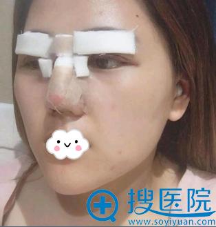 西安逆时光续锐切开双眼皮+假体隆鼻综合整形术后效果