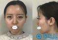 气质女神的背后:我在武汉米兰齐尚华处做了假体隆鼻综合整形