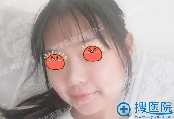 做改脸型手术10天恢复照