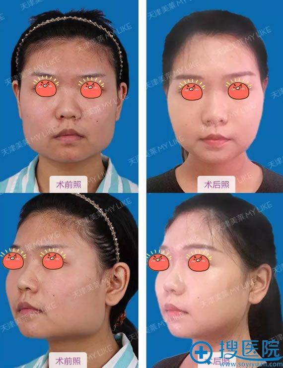 天津美莱罗金超改脸型案例对比图