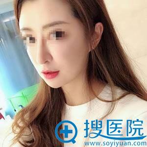 找北京尚益嘉容黎星取出生长因子30天后