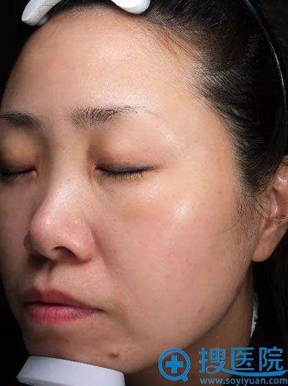 注射瘦脸针和玻尿酸填充前