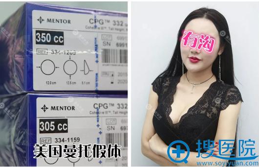 重庆华美美国曼托假体隆胸材料和真人隆胸案例