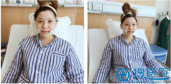 上海美莱袁玉坤脂肪丰胸术后效果