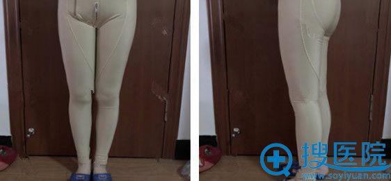 在青岛时光整形做大腿吸脂术后第6天恢复图