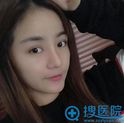 郑志玉自体肋软骨隆鼻术后一个月
