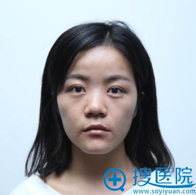 在上海时光做隆鼻术前照片