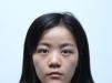 分享我在上海时光整形外科找郑志玉做自体肋软骨隆鼻的手术经历