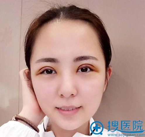 长沙亚韩做双眼皮3天恢复照
