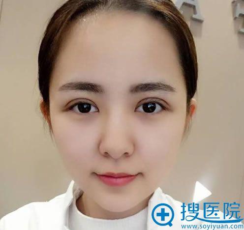 找长沙亚韩俞惠忠做双眼皮7天后