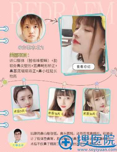 上海薇琳医美顾陆健做的鼻综合隆鼻案例
