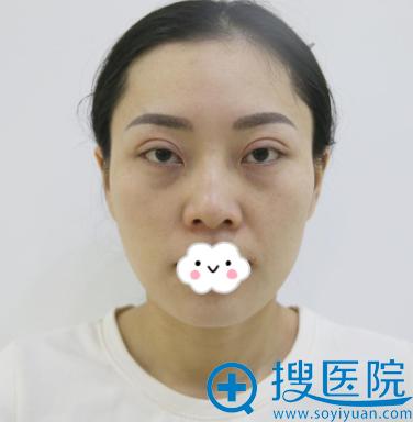 济南韩氏整形美容医院白永辉眼部修复真人案例