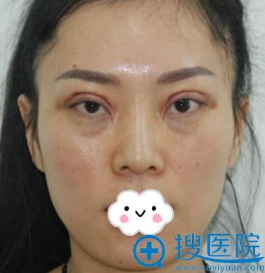 济南韩氏白永辉双眼皮失败修复案例图