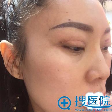 济南韩氏白永辉双眼皮失败修复术后10天案例图
