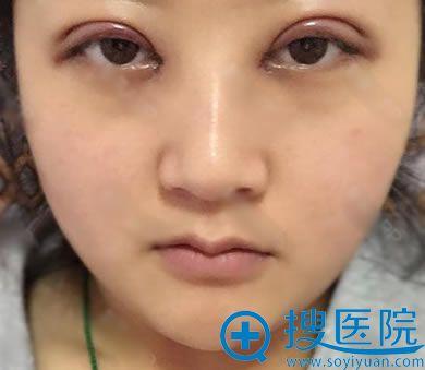 北京美天刚做完双眼皮开眼角照片