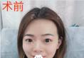 都说我去韩国整形 其实在深圳伊婉王力佳处做假体综合隆鼻了