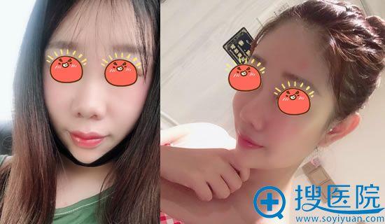 北京伊美尔长岛整形鼻综合案例