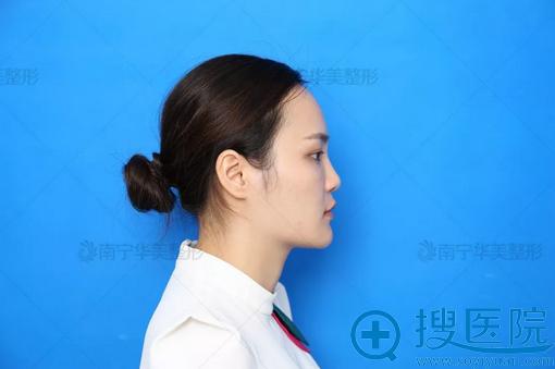玻尿酸隆鼻失败图片