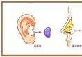 纠结哪种隆鼻材料好?膨体/自体软骨/玻尿酸隆鼻材料和价格表pk