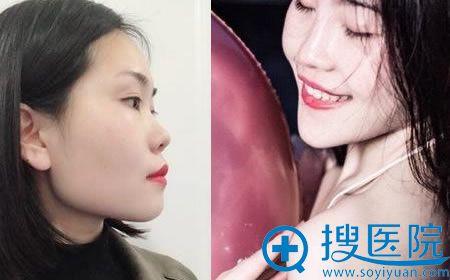 北京壹加壹张禄峰硅胶隆鼻案例