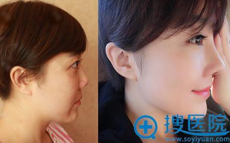 北京丽都整形吴玉家肋软骨隆鼻案例