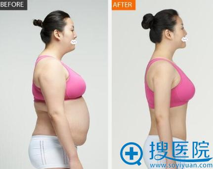 深圳美莱整形医院吸脂瘦身真人案例效果对比图
