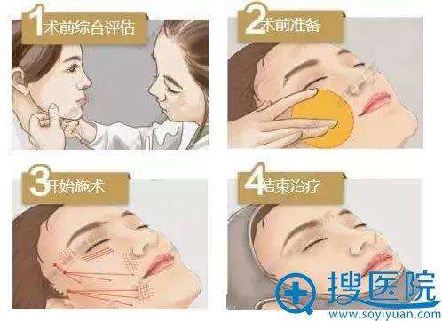 面部埋线提升操作过程