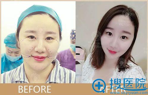 做了面部线雕恢复效果对比图