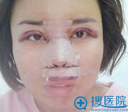 北京世熙刚做完双眼皮和隆鼻照片