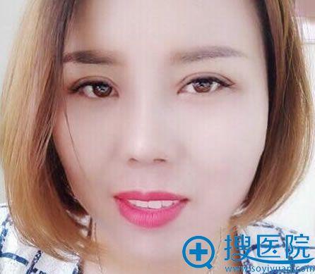北京世熙整形割双眼皮和隆鼻40天后