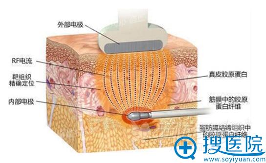 激光溶脂减肥原理图