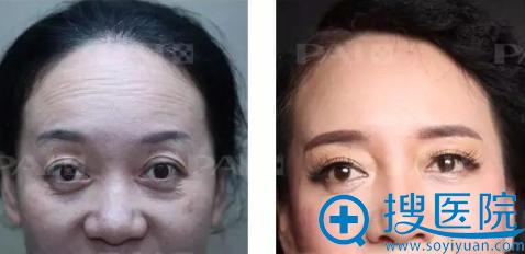 深圳鹏爱注射瘦脸除皱除皱案例效果对比图