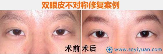南京华美全切双眼皮不对称修复案例
