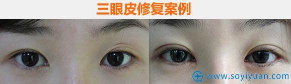 南京华美整形医院三眼皮修复案例图