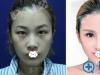 真人案例图了解玻尿酸和瘦脸除皱除皱效果哪个更好?价格是多少