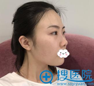 福州海峡整形林秀兰假体隆鼻+自体肋软骨隆鼻综合整形案例