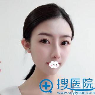 福州海峡鼻子谁做的好?林秀兰鼻综合隆鼻效果图