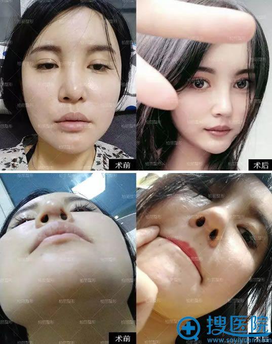 北京柏丽李劲良鼻修复案例对比图