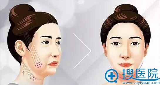 面部线雕提升效果怎么样