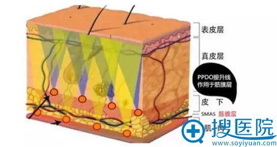 线雕手术进入蛋白线的位置