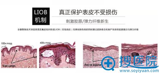 超皮秒LIOB机制:真正保护表皮不收损伤。