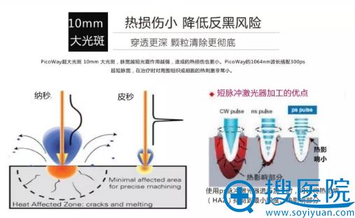 超皮秒10mm大光斑:热损伤小,降低反黑风险