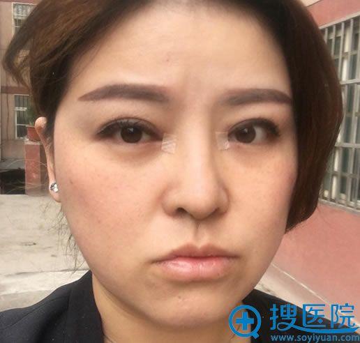 做完双眼皮修复和隆鼻手术6天后