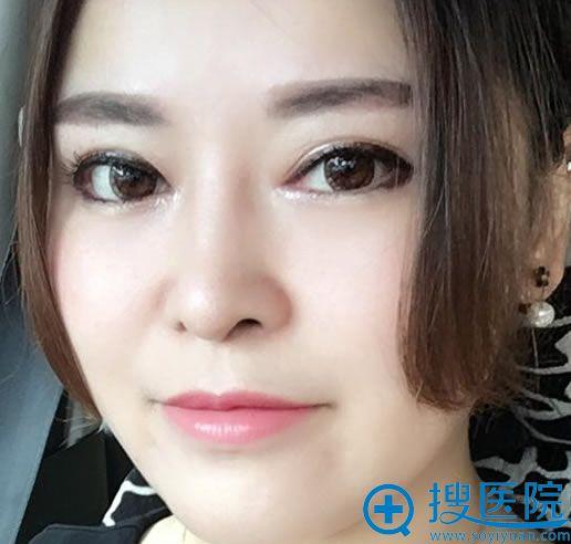 北京美雅枫韩新鸣双眼皮案例3个月效果