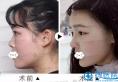 案例图带你了解自体肋软骨隆鼻的优点,为何大家不选假体隆鼻?