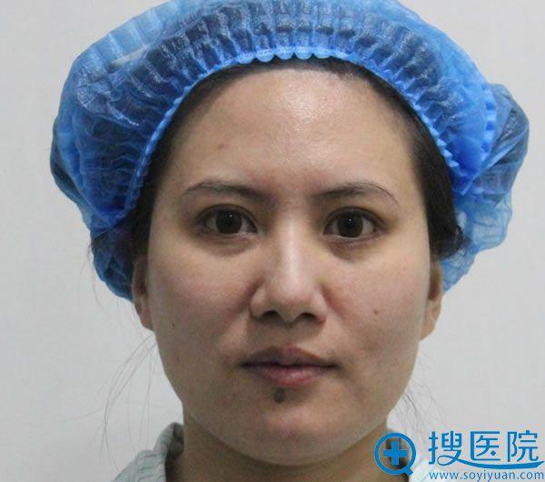 在北京东方和谐做自体脂肪填充前